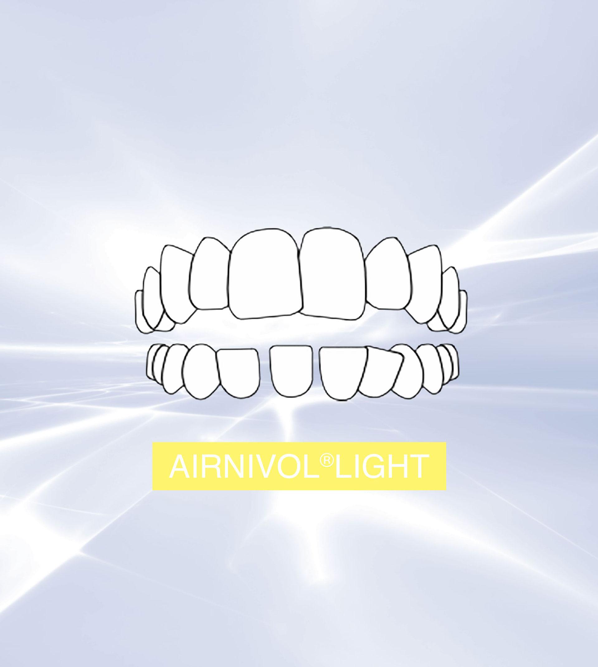 airnivol-light
